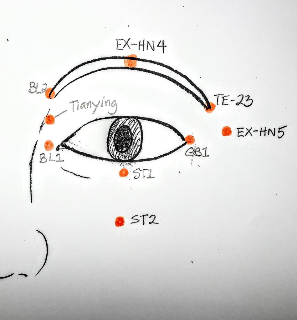 Eye acupressure points for myopia